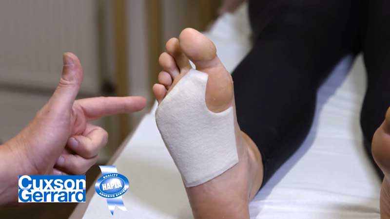 The Plantar Cover Pad