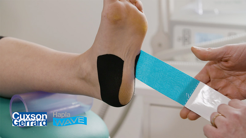 19190 CG Hapla Wave Taping Technique For Plantar Heel Pain